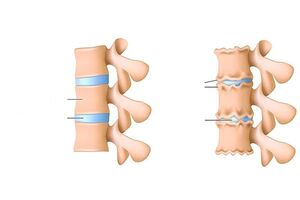 Miks haaravad sormede liigesed Bovide ja liigeste haiguste ennetamine
