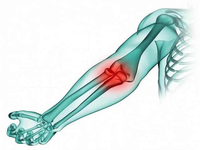 Ravi liigeste vigastustega