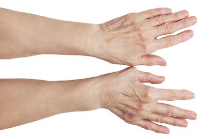 Mis juhtub artriit kaed Liigese valu pillide loetelu