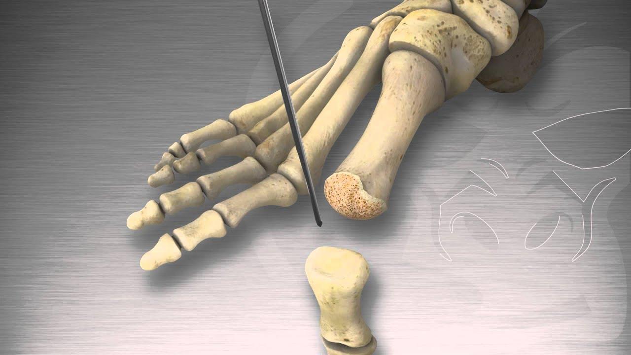 Mis on artroosi peatus 1 kraadiravi Terav valu liigese ajal