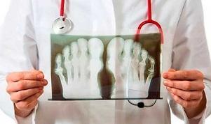 Mis on kuunarliide artriit ja artroos Parem vaandeliigestega valu