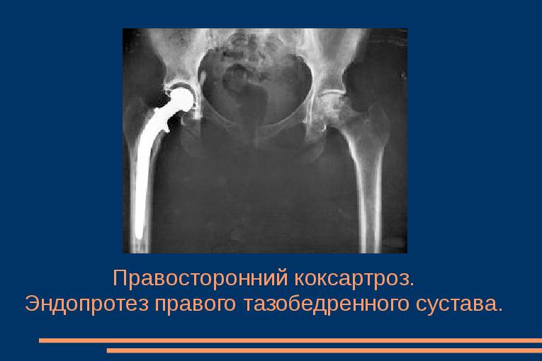 Mis salvid anesteesia liigeste Muusika liigeste raviks