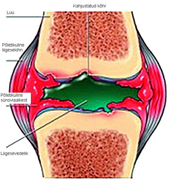 Liigeste geraniumravi Fistuli ravi liigese