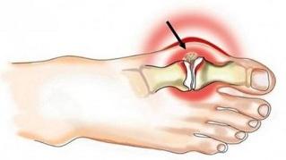 Ola liigese artroosiga geeli vastu liigeste valu vastu