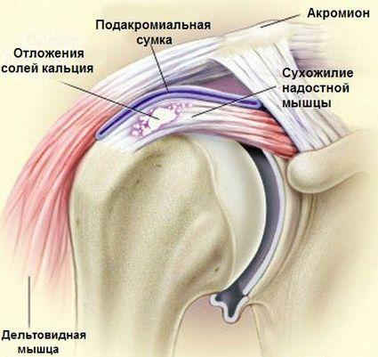 Ola liigese artroosiga DOA kuunarnuki liigeste ravi