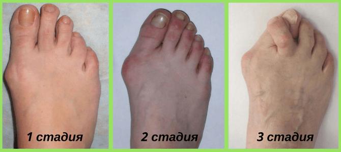 Toidu allergiad ja liigesevalu