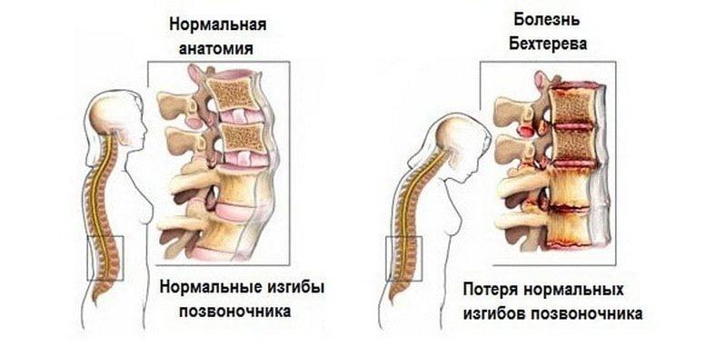 Magneesium liigeste raviks haavandid suus ja liigesevalu