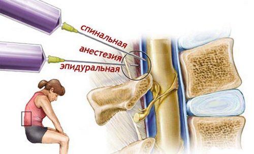 Valuvaigistid artriidi kaes
