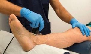 Suurte liigeste artroos Ravi artriidi artriit