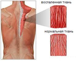 Tabletid lihaste ja uhiste poletik Tais liigesed kreem