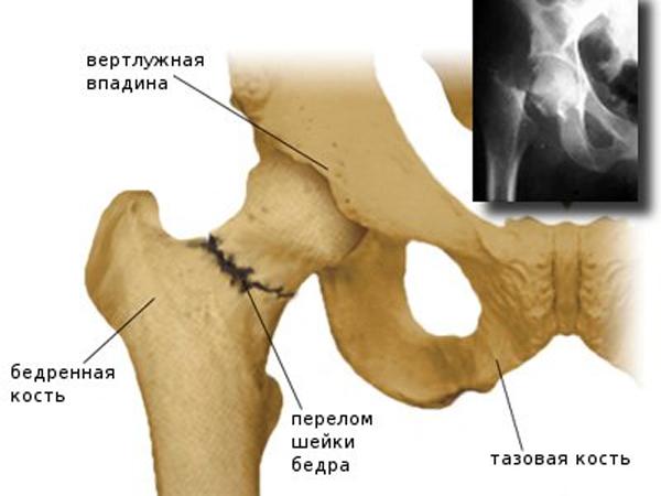 Ravi artriidi artrosi ulevaated