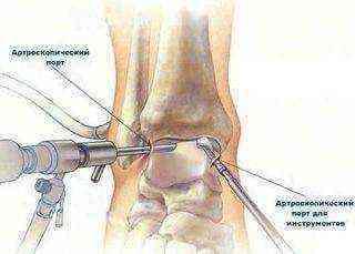 Valu oiges Brachy liigestes piinamise valu liigestes