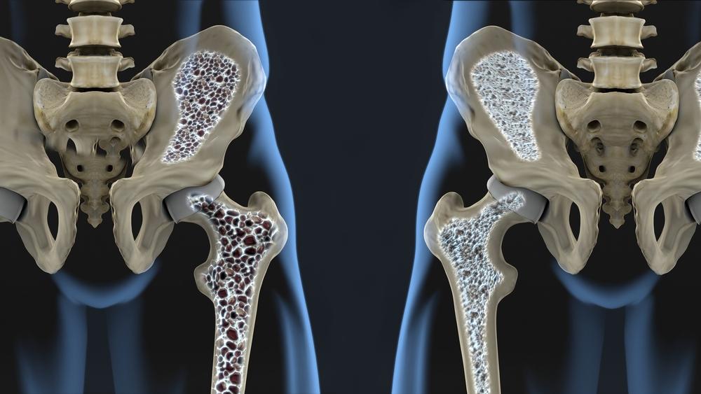Valu liigese artroosis