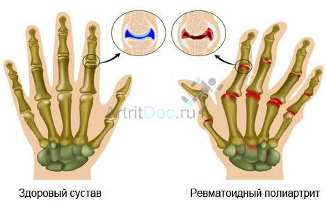 Valu pohjused sormede liigestes ja kaes norkus EOS liigeste hindade raviks