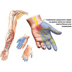 valus vasaku kae keskmise sorme liigesed Polved haigestunud