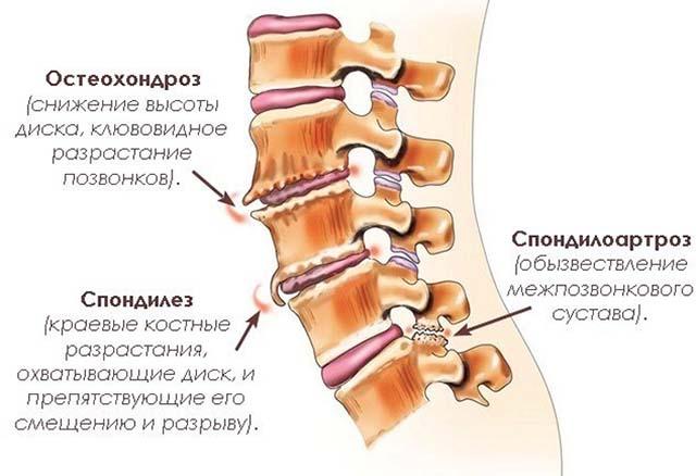Artriidi liigesed Mis on Maitsetaimede liigeste ravi kodus