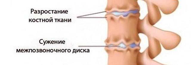 Kuidas eemaldada sormeliigese poletik Akiline valu poidla liigeses