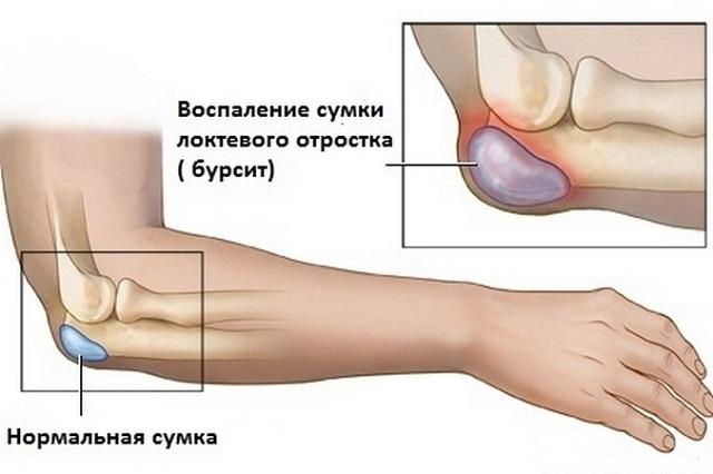 Vigastused ja haigused kuunarnuki liigese