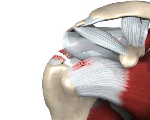 Olaliigese diagonaalide vigastuse korral Sulges valus kuunarvarre ravi