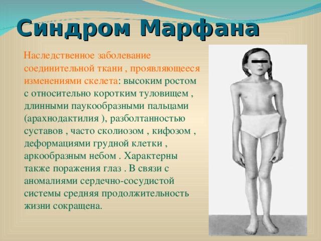 On haiguse liigeste parandi edastatud Olaliigendi osteokondroosi ravi