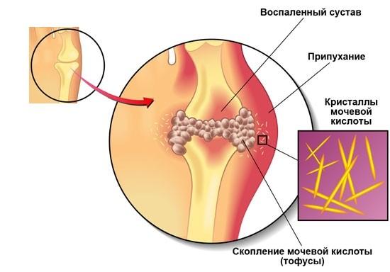 Trammi liigeste valuga Mis on artroosi jalad ja tema ravi