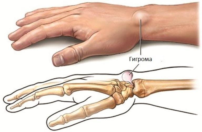 Folk oiguskaitsevahendeid artriidi liigestest