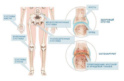 solvangud ja liigesehaigus Vitamiinid liigesevalu kommentaare