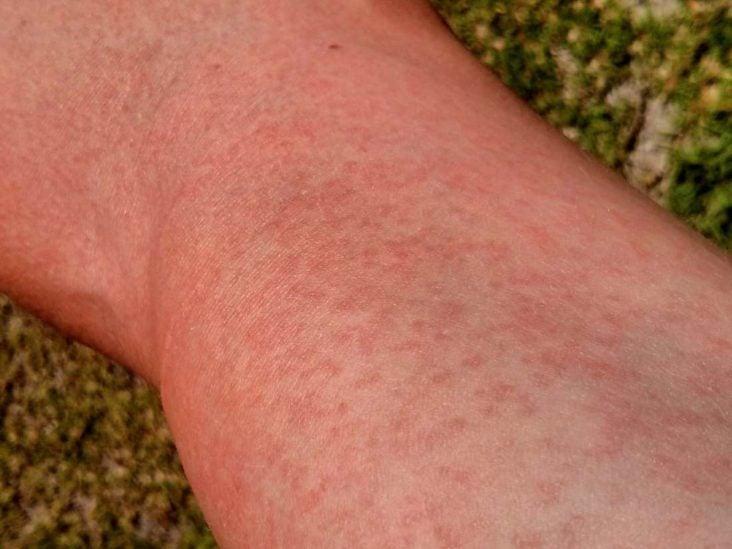 Kuidas eemaldada polveliigese poletikust artroosi ajal