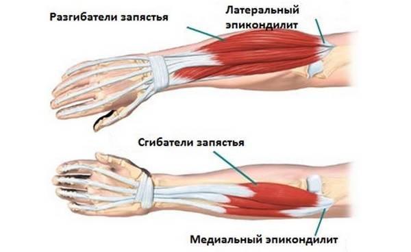 Kirovi liigeste ravi Artrohi ravi ja ennetamine