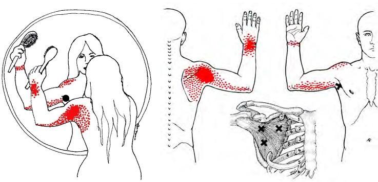 Valu kuunarnukis ja parempoolse lihastes Kapa hammaste ulevaateid liigeste tootlemisel