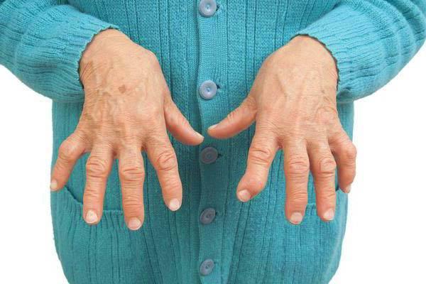 Folk oiguskaitsevahendeid artriidi liigestest Struktuur liigeste ravi