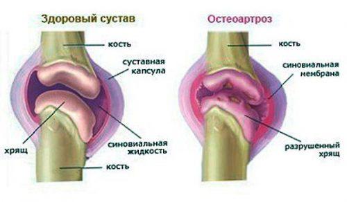 valu vasakus kaes liigeses