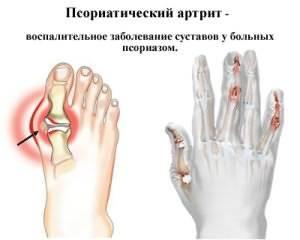 Artroosi ja Osteoprozozi ravi