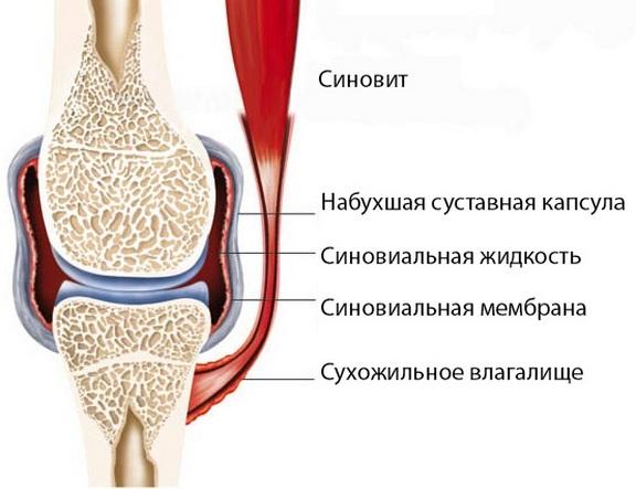 Paisuva liigese deformatsioon Vanaema poletiku liigeste