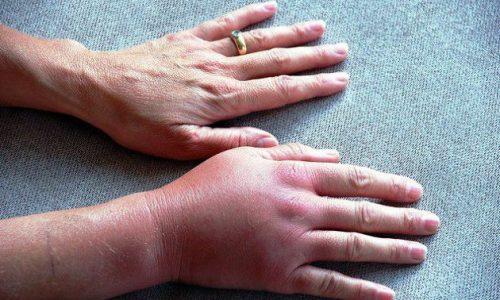 Uhine haigus p Mandibulaarne liigesevalu
