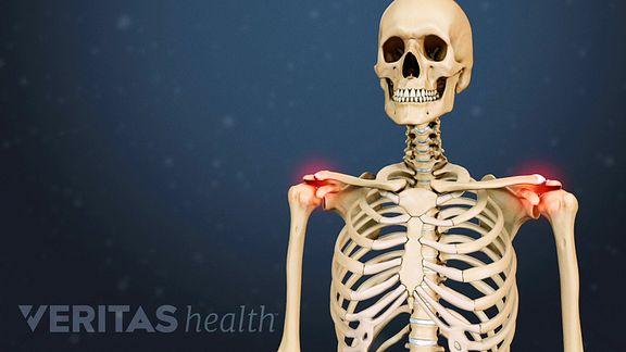 Vasaku ola liigese haigused Parimad salvid liigeste vigasmuses