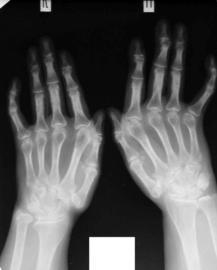 Artriidi artriidi ravi rahvameetodite abil Juudi liigese valus