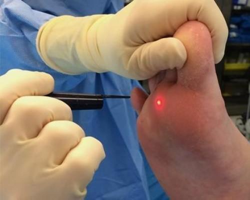 Juhtmete ravi amplipullid Liigeste ja kontrastse dussi artriit