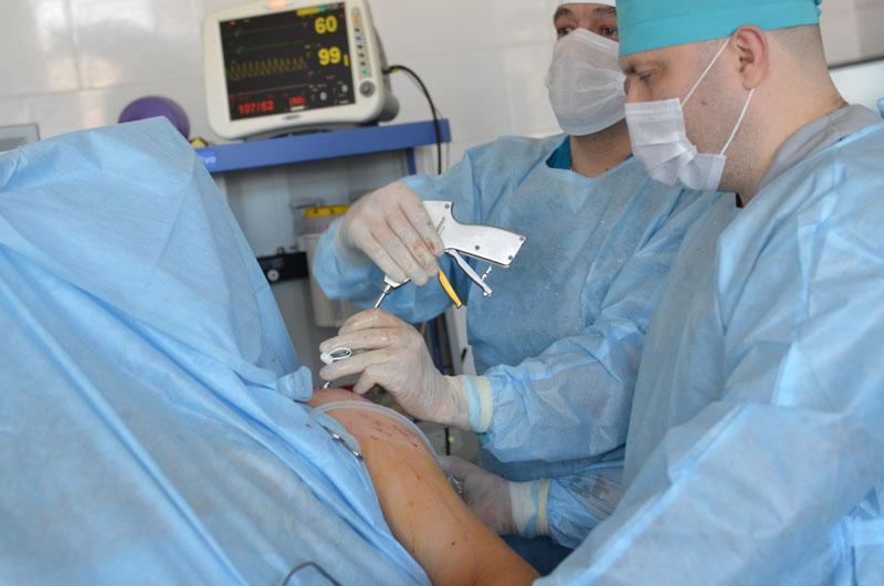 valutab kuunarnukil liigese kui maarduda Gouty artriit kuunarnukk