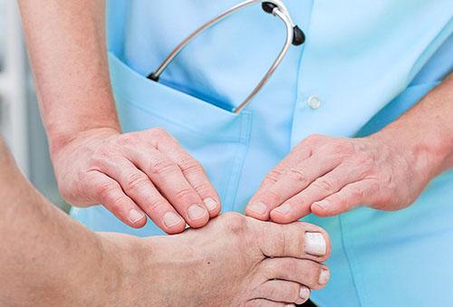 Sustava protsessi poletik Valu ola liigese ja selle ravi