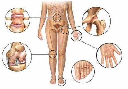Liigeste artroos Ravi rahvameditsiin Meditsiinivalu liigesed