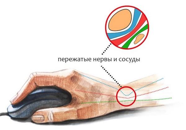 kuunarnuki haiguse ravi Tugev valu liigestes