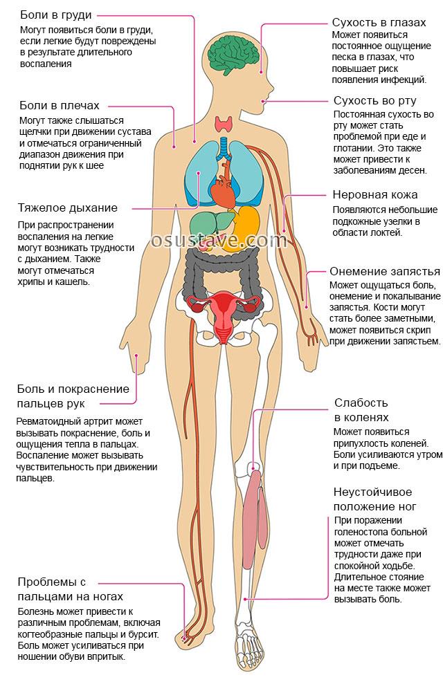 Harjade liigeste haigused ja peatus Valu ola liigestes liikumisel