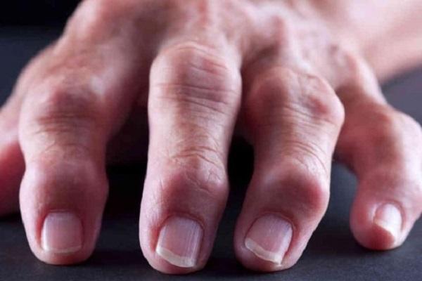 Mis juhtub artriit kaed Miks haiget liigeste peatub