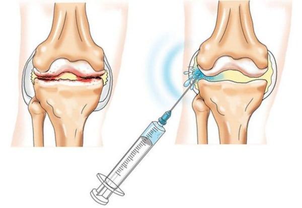 Elu liigeste artroosiga Nandrolon liigeste ravi