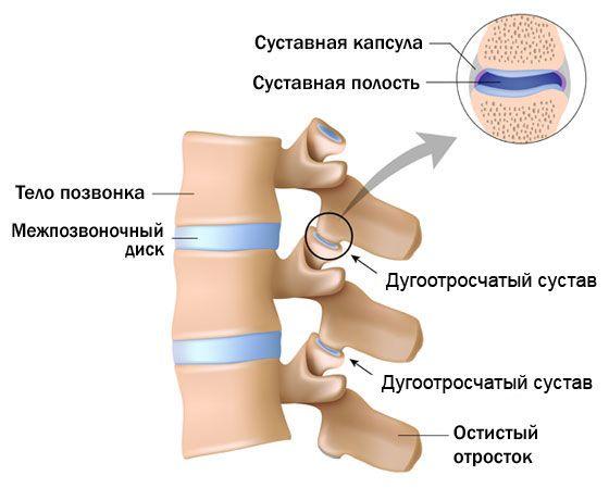 Linna luua artriit ola liigese kuunarnuki uhise poletik, kuidas valu eemaldada