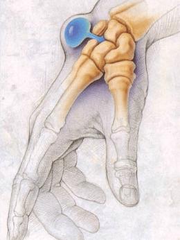 Juhtpintslite liigeste ravi