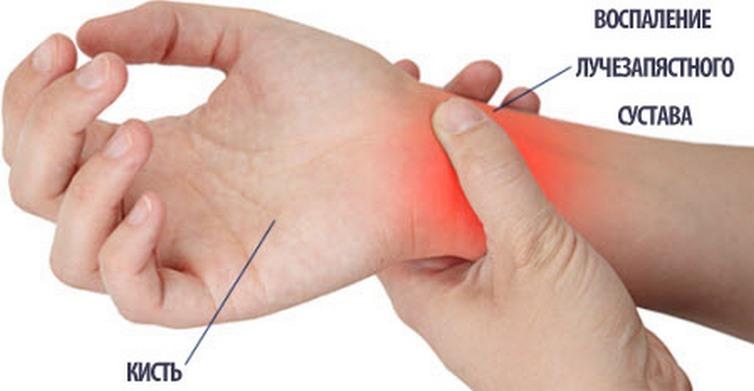 Liigeste soojenemise kreemid Sormede liigeste artroos ja artriit