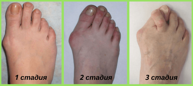 Artroos 4 etappide ravi