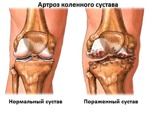 Paisuva liigese deformatsioon Kiirusta vasaku ola liigese ravi